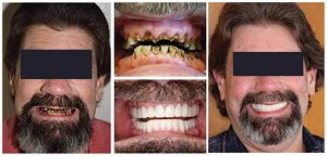 Las carillas dentales